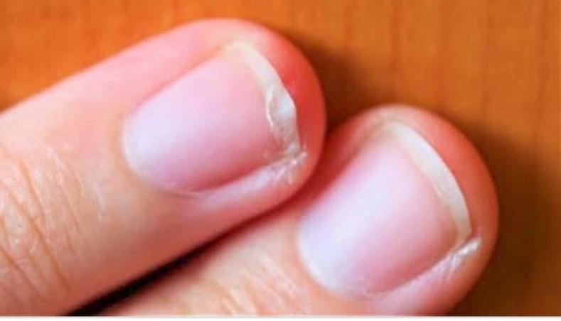 二枚爪の原因は・・・ - FAAVOFAAVO湘南